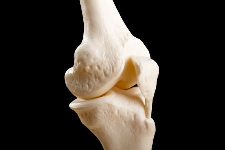 Human knee anatomy with femur, tibia and fibula bones isolated on black