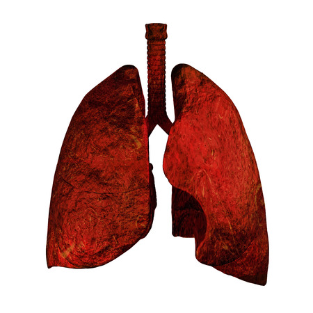 Human lungs and bronchi in x-ray view photo