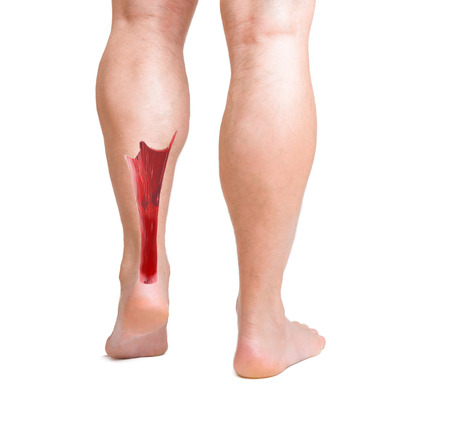 calcaneus: human achilles tendon