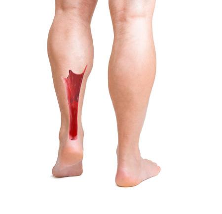 human achilles tendon