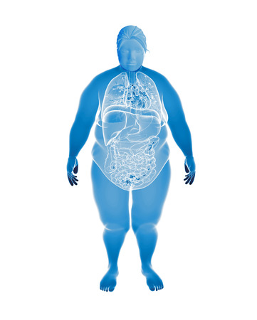 Render Illustration of Obese Womans Organs illustration