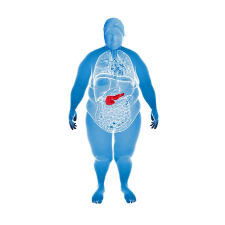 donne obese: Le donne obese con pancreas evidenziati