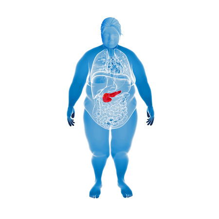 Obese Women  with highlighted pancreas  photo