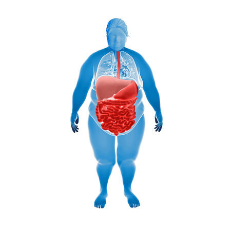 Render Illustration of Obese Womans Organs