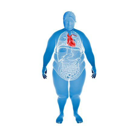 Render Illustration of Obese Woman's Organs
