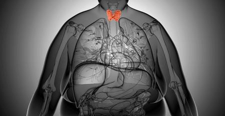 obesidad: Mujer tiroides gl�ndula anatom�a en vista de rayos x