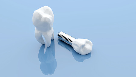 straighten: Dental implant and teeth, isolated on blue medical background