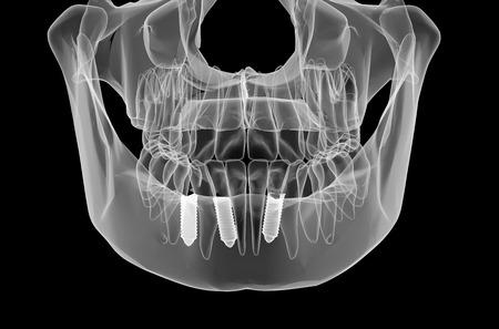 Tandheelkundig implantaat en tanden. x-ray view