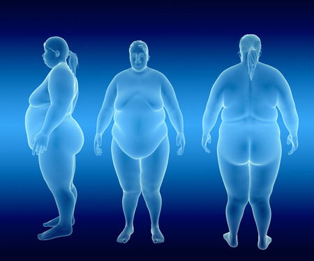 belly fat: Render Illustration of Obese Woman