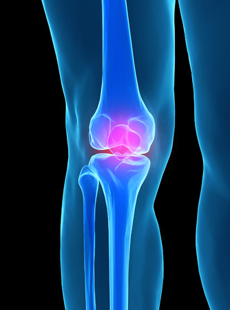 fibula: Human knee anatomy with femur, tibia and fibula bones under X-rays isolated on black.