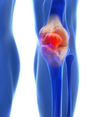 tibia: Human knee anatomy with femur, tibia and fibula bones under X-rays isolated on black.