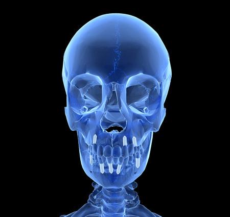 prothèse dentaire: Implant dentaire et les dents, isolé sur fond noir