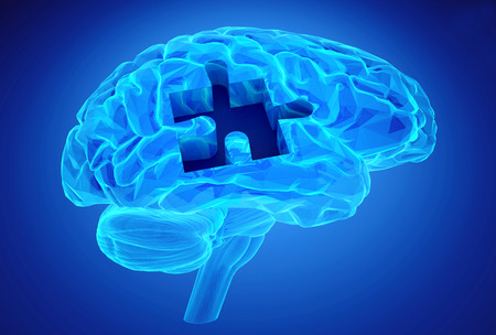 mentally: Human brain research and memory loss as symbol of alzheimer