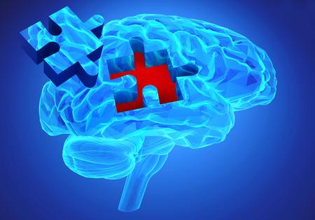 La investigación del cerebro humano y la pérdida de memoria como símbolo de alzheimer