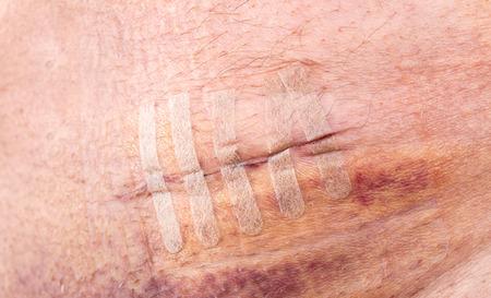 suture: Surgical stitches suture wound at abdomen