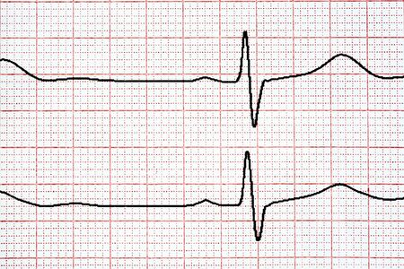 diagnosis: Chart background. Analytic concept. Cardio diagnosis ekg