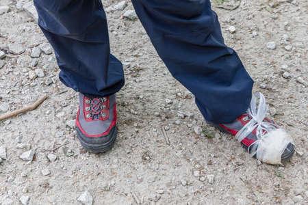 a broken climbing shoe while climbing a mountain