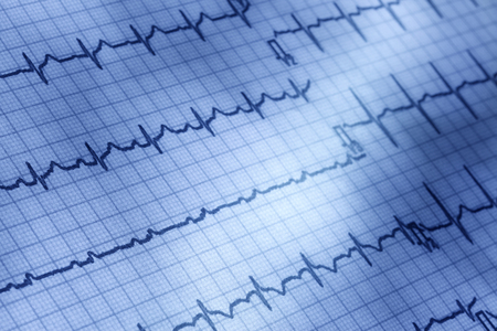 of electrocardiogram: Close up of electrocardiogram