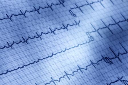 elettrocardiogramma: Primo piano di elettrocardiogramma