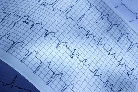 pulsating: Close up of electrocardiogram