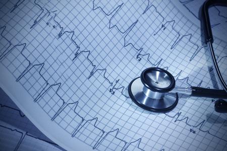 electrocardiograma: Estetoscopio y un electrocardiograma de HealthcareDoctor
