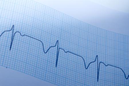 electrocardiograma: Cierre de electrocardiograma