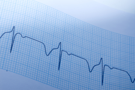 electrocardiogram: Close up of electrocardiogram