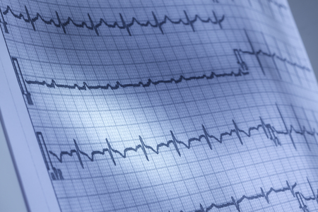 ventricle: Close up of electrocardiogram