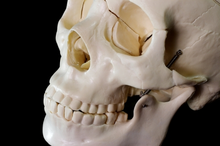 eye socket: Medical learning skull laying on a black background Stock Photo