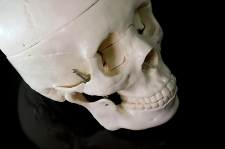 brainpan: Medical learning skull laying on a black background Stock Photo