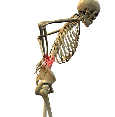 hunched: 3D rendering of a human skeleton in a position suggesting back pain, hunched over with the hands holding the lumbar area Stock Photo