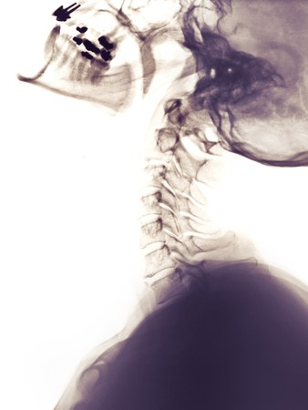 Cervical spine x-ray of a 45 year old woman showing the neck vertebrae in extension.  This x-ray was taken after an auto accident with the patient complaining of neck pain photo