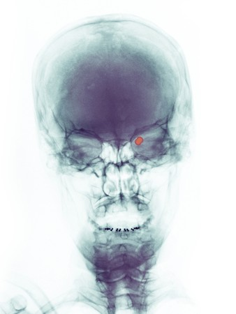 skull x-ray of a 73 year old woman who was shot in the right eye with a pellet gun. The pellet can be seen within the orbit of the eye.