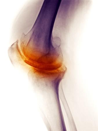 artrite: X-Ray mostrando gravi artrosi degenerativa in ginocchio di un uomo 58 anni Archivio Fotografico