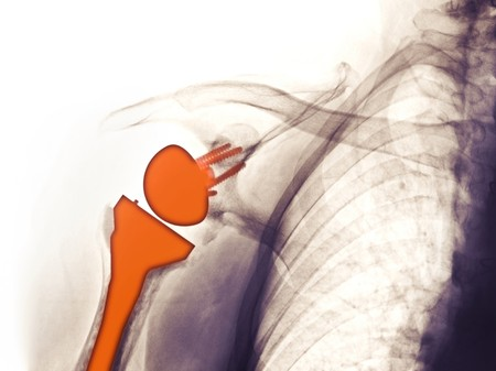 x-ray showing a shoulder replacement in a 69 year old man