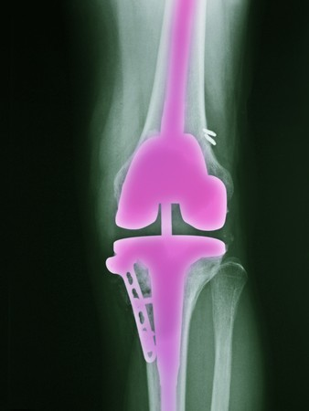 x-ray of the leg of a 46 year old female who had surgery for a total knee replacement