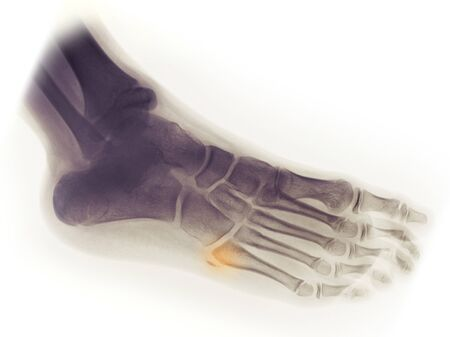 X-ray of the foot of a 10 year old boy showing an avulsion fracture of the 5th metatarsal 写真素材