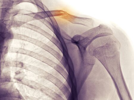fracture: shoulder x-ray of a 12 year old boy who fell and fractured his clavicle (collarbone)
