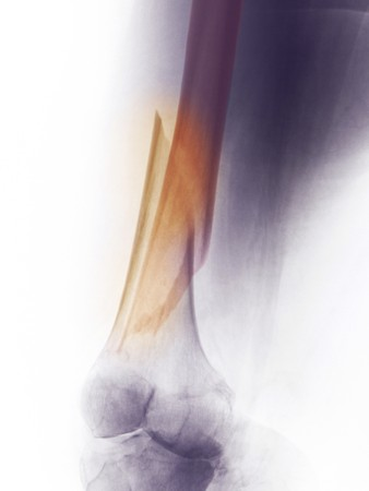 X-ray of the femur of a 60 year old female who fell and fractured her distal femur