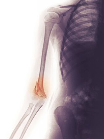 X-ray of the arm of a 4 year old boy showing a fracture of the distal humerus Stock Photo