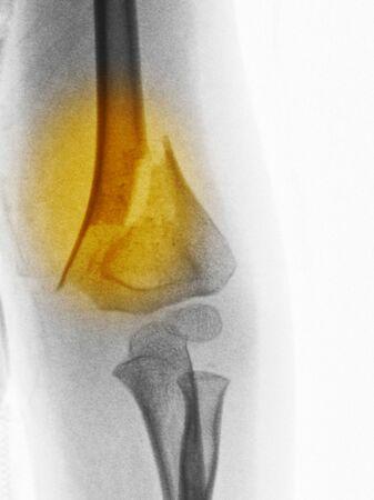 distal: Rayos x del brazo de un niño de 4 años mostrando una fractura del húmero distal  Foto de archivo