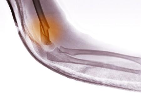 distal: Rayos x del brazo de un niño de 4 años mostrando una fractura del húmero distal. Se ha aplicado una férula de fibra de vidrio para el brazo para la estabilización.