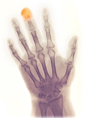 X-ray of the hand of a 64 year old female who got her middle finger crushed in a door and partially amputated and fractured the distal phalanx