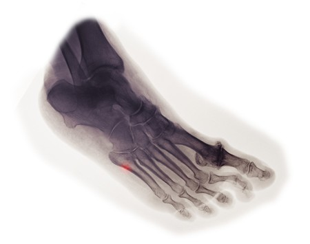 foot x-ray of a 63 year old woman who fell and fractured the base of her 5th metatarsal