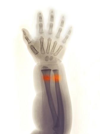 distal: Antebrazo y mano una radiograf�a de una ni�a de 2 a�o de edad que cay� y sufri� una fractura de la greenstick de su extremidad distal del radio y el c�bito.