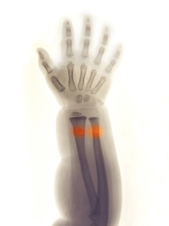 sustained: Forearm and hand x-ray of a 2 year old girl who fell and sustained a greenstick fracture of her distal radius and ulna. Stock Photo