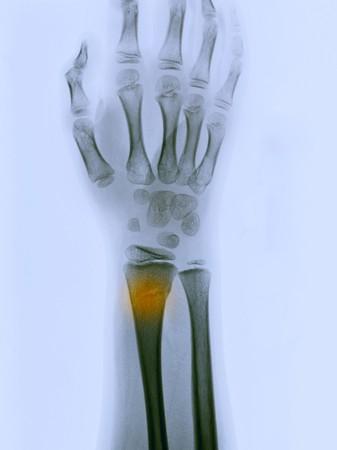 distal: rayos x mostrando una fractura greenstick de la extremidad distal del radio en un ni�o de 9 a�os  Foto de archivo
