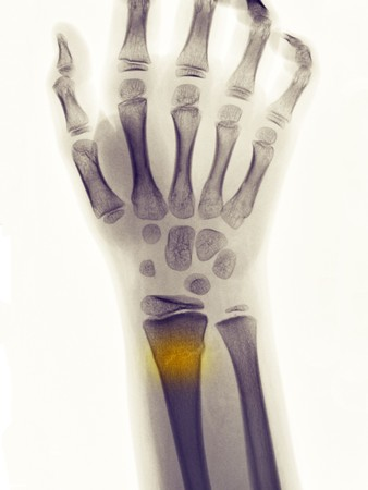 Rayos x mostrando una fractura greenstick de la extremidad distal del radio en un niño de 9 años  Foto de archivo - 7658287