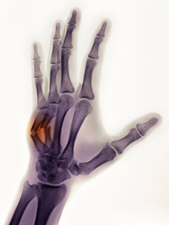 injure: hand x-ray of a 19 year old male showing a healing boxers fracture with angulated 4rth and 5th metacarpals, and callus formation. Stock Photo