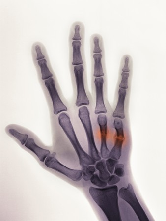occurs: hand x-ray of a 19 year old male showing a healing boxers fracture with angulated 4rth and 5th metacarpals, and callus formation. This injury usually occurs when someone punches a wall in anger Stock Photo